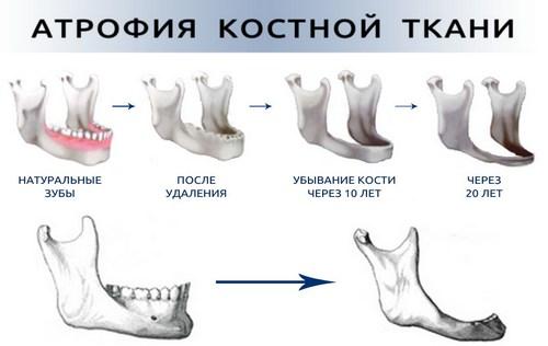 Атрофия костной ткани челюсти
