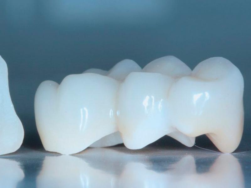 Преимущества диоксида циркония для протезирования зубов