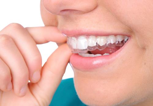 Капы для выравнивания зубов и их отличия от брекетов