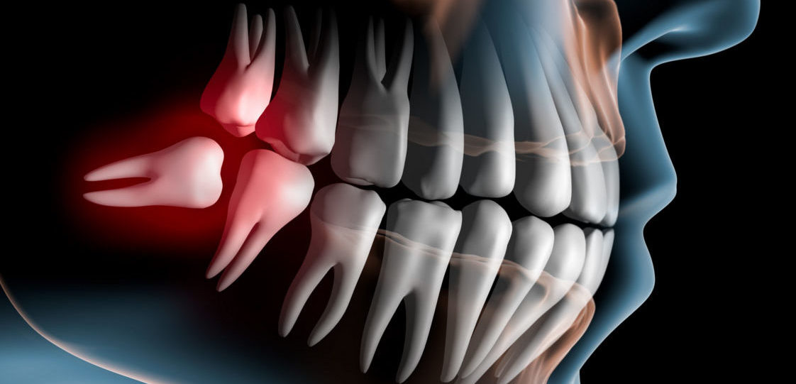 Ретинированный зуб (ретенция)